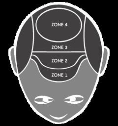 scalppigmentatie zones